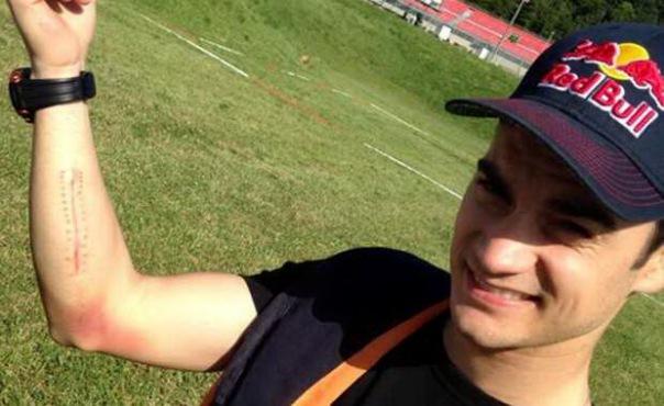 Dani Pedrosa usai operasi Arm Pump